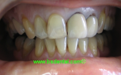 Dentist Malaysia Cosmetic Dentist And Family Dentist In
